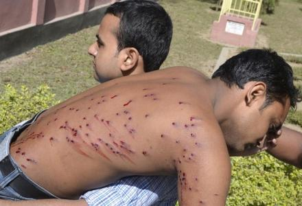 bangladesh_ru_students_fired_upon_by_police.jpg